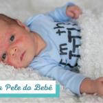 AKTA-Liv-Dermatologia-Problemas-na-Pele-do-Bebe-Blog