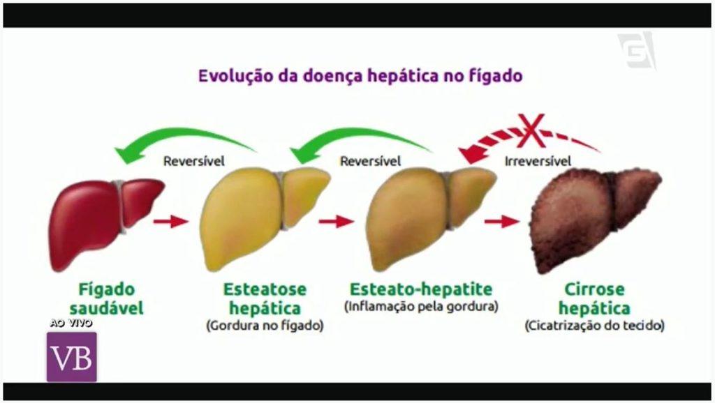 AKTA Liv - endocrinologista vila mariana - endocrinologia e metabologia - grodura no figado - esteatose hepática