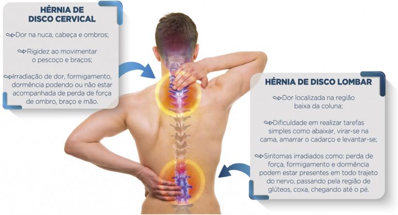 Akta Liv - endocrinologia - nutrição - fisioterapia - dor nas costas - hernia de disco