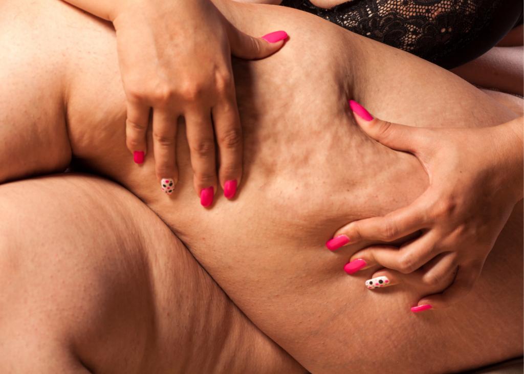 AKTA-Liv-Dermatologia-Problemas-Dermatológicos-Obesidade-Celulite