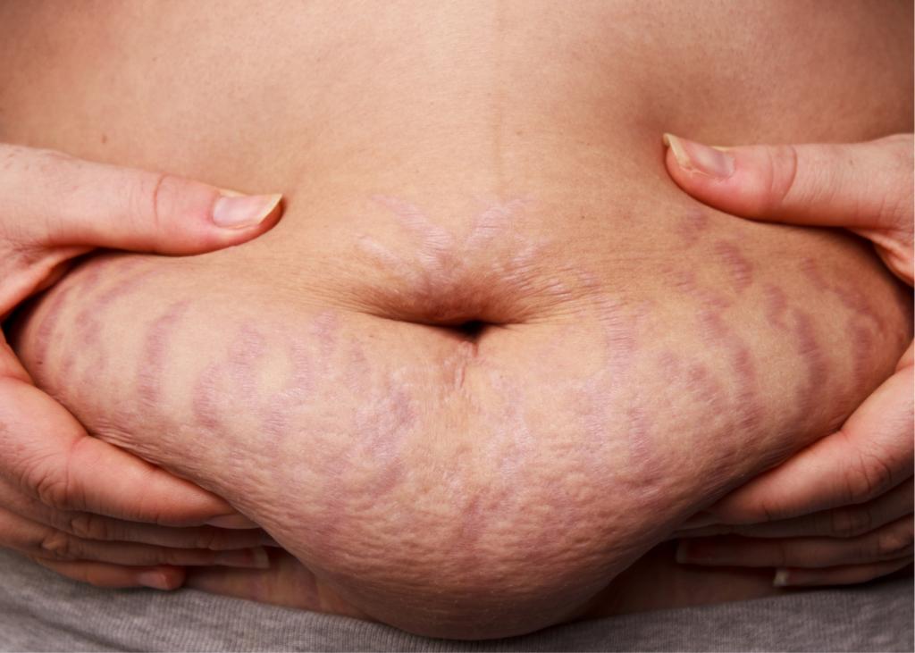 AKTA-Liv-Dermatologia-Problemas-Dermatológicos-Obesidade-estria