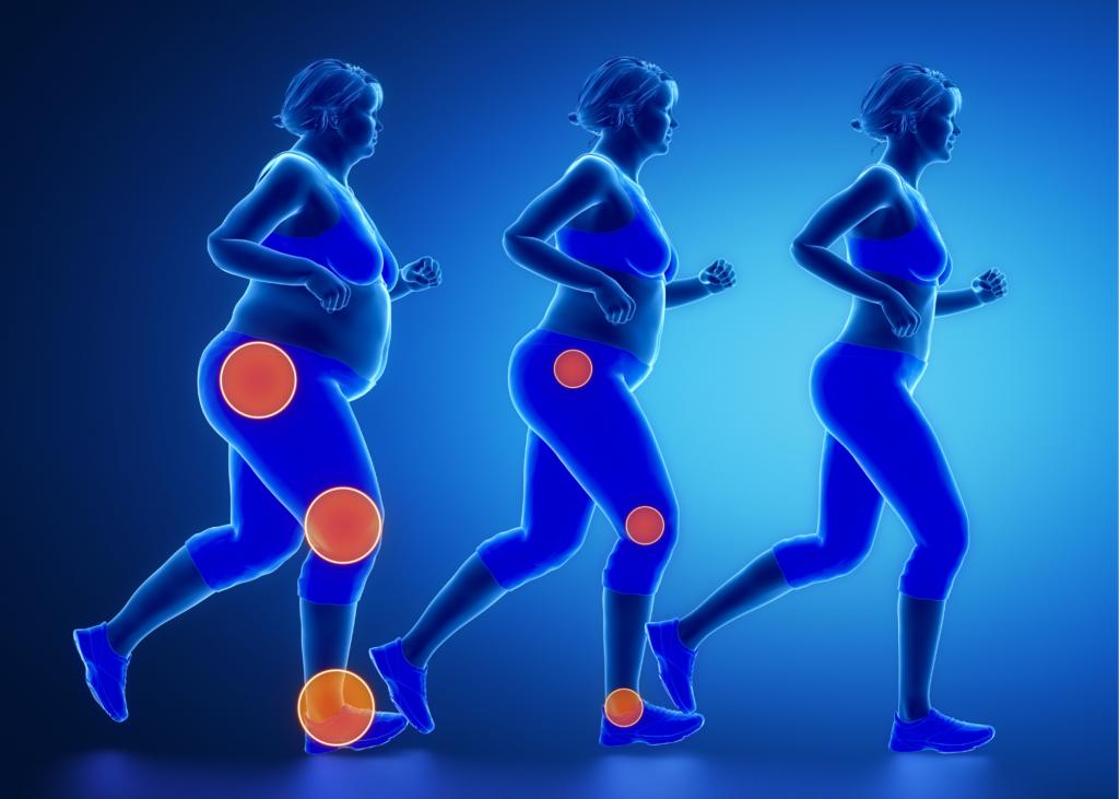 AKTA-Liv-fisioterapia-obesidade-dores-articulacoes