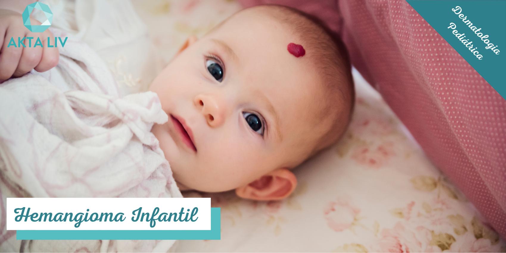 AKTA-Liv-Dermatologia-Hemangioma-Infantil