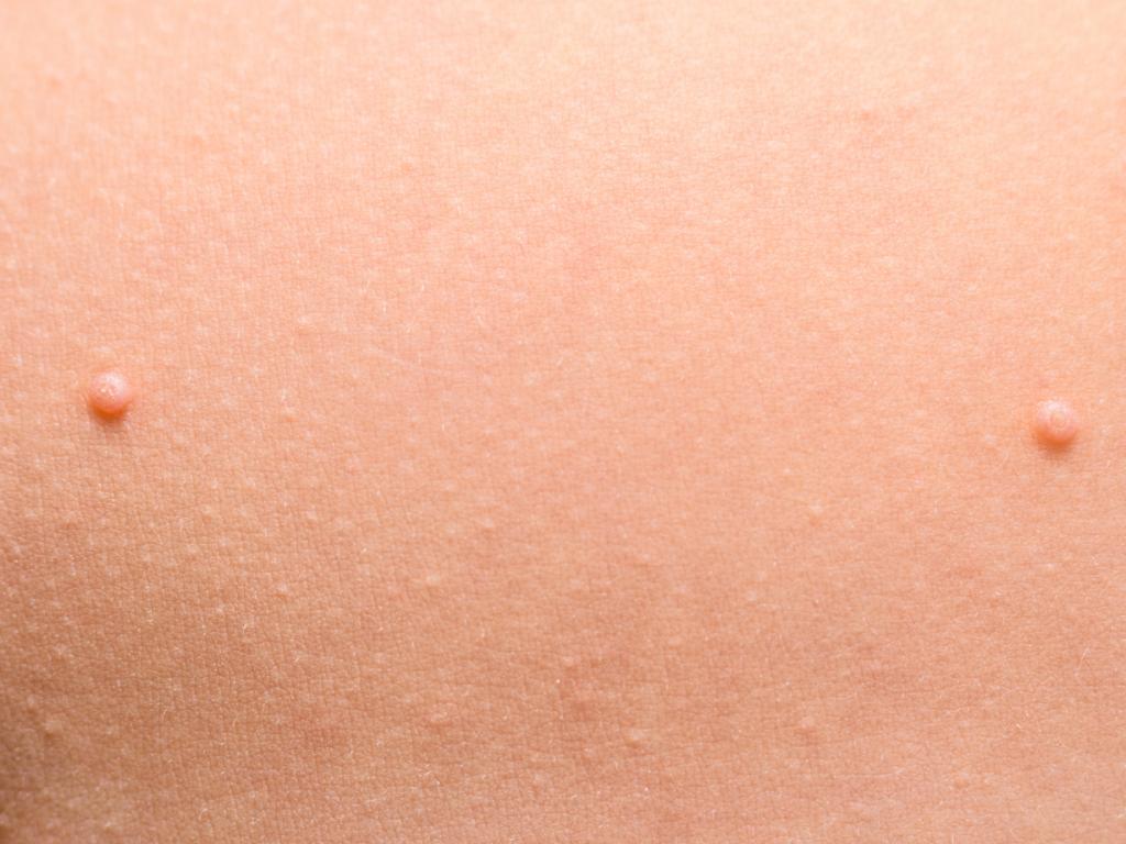 AKTA-Liv-Dermatologia-Molusco-contagioso-peito-criança